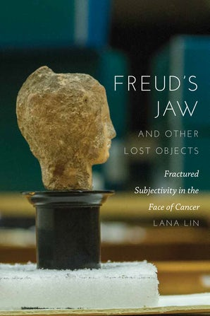 Freud's Jaw and Other Lost Objects Paperback  by Lana Lin